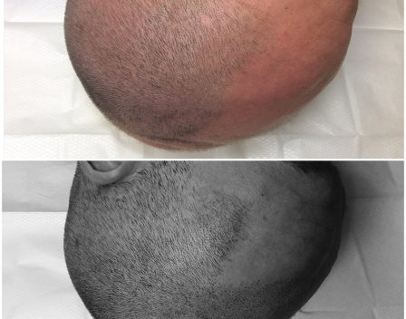 Scalp Before and After 11 copy