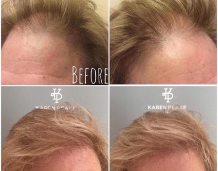 Scalp Before and After 3 copy